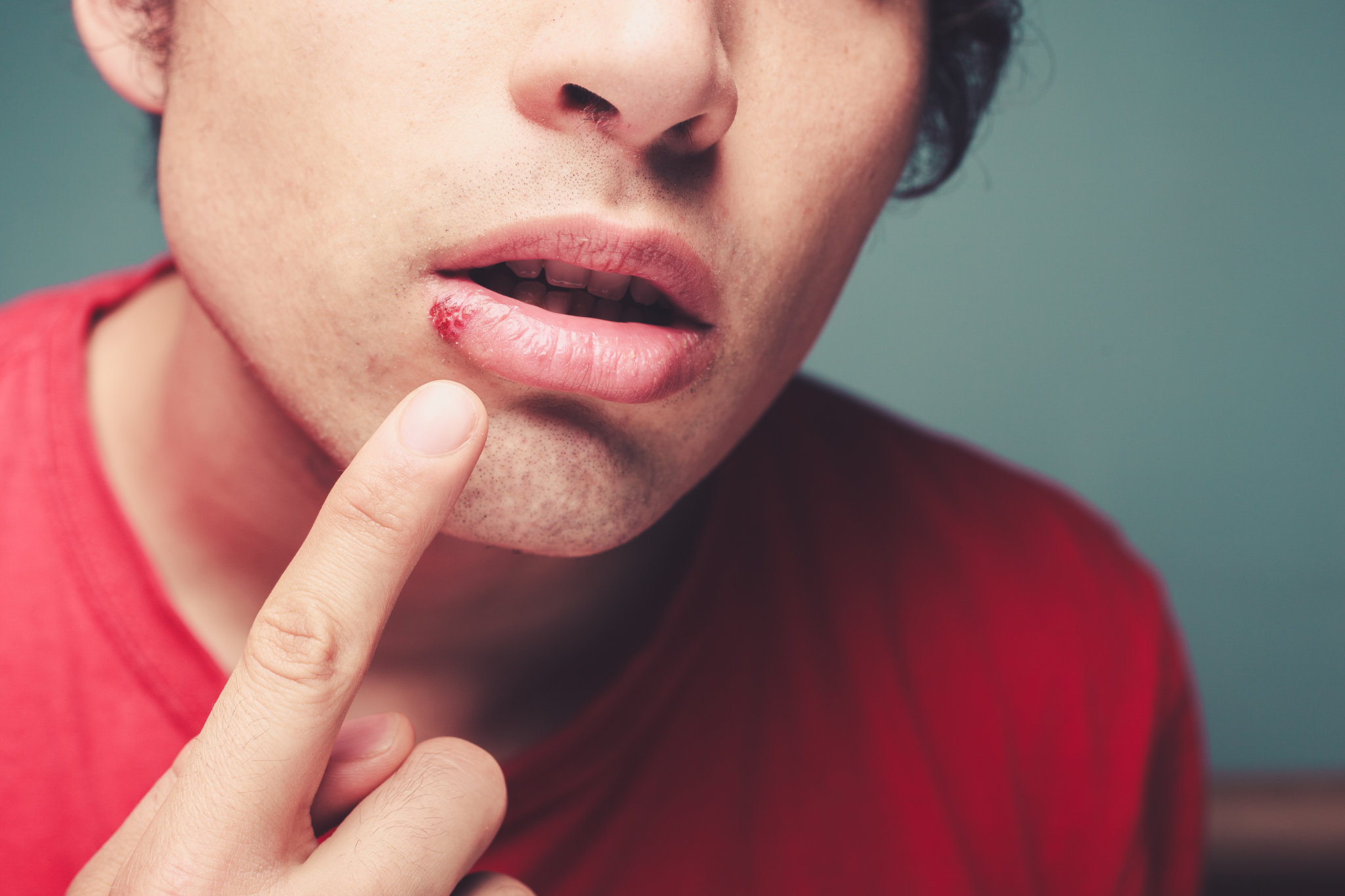 Man with cold sore on lip