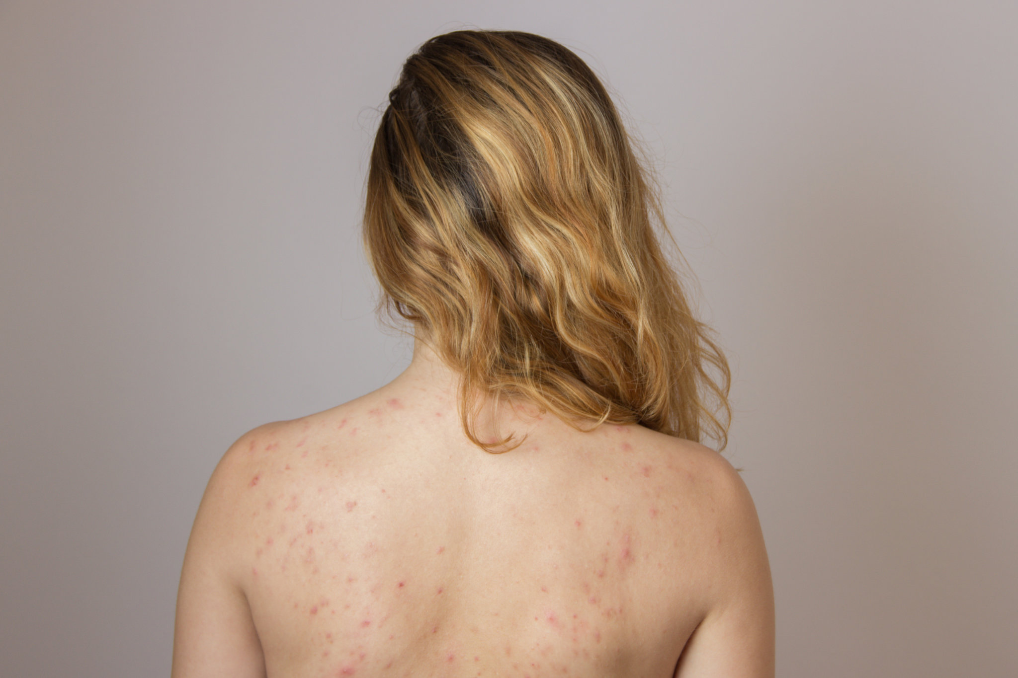 Woman's back with acne